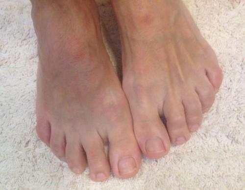 Die Abart gribka der Nägel auf den Beinen